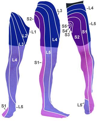 Dermatome, sciatica, leg, pain, wokingham, physio
